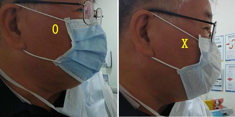 dental-mask-strap